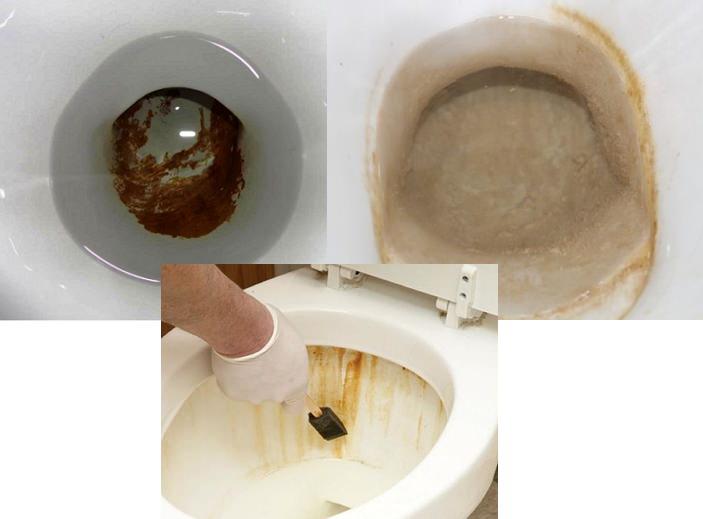 Как удалить мочевой камень в домашних условиях 898